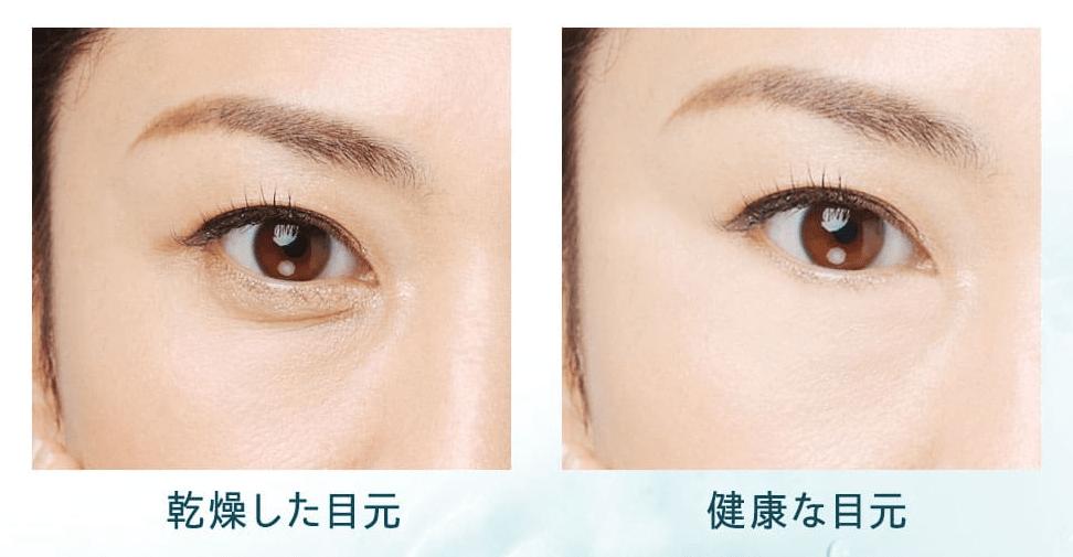 目元の印象の違い老け顔