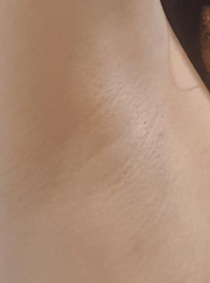 除毛クリーム使用後のツルツルの脇